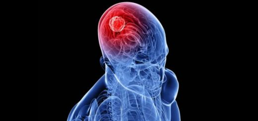 آیا ارتباطی بین تلفنهمراه با سرطان مغز وجود دارد؟