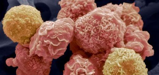 سرطان قابل پیشگیری است