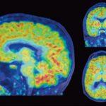 فعالیت ژن در مغز انسان