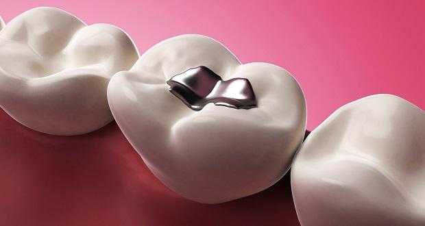 ترمیم خودکار دندان