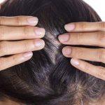 سریع سفید شدن مو