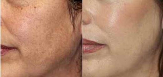 از بین بردن لکههای پوستی