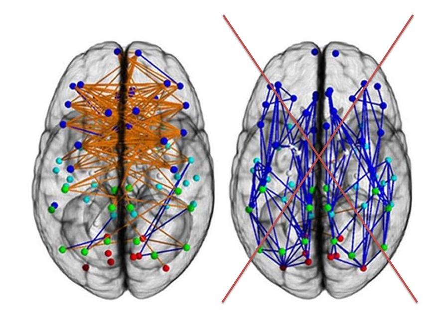 brain (6)