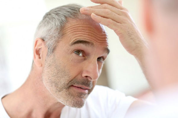 male-hair-loss-treatment5