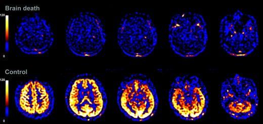اسکنهای کامپیوتری از فعالیت مغز یک بیمار، قبل و بعد از مرگ مغزی