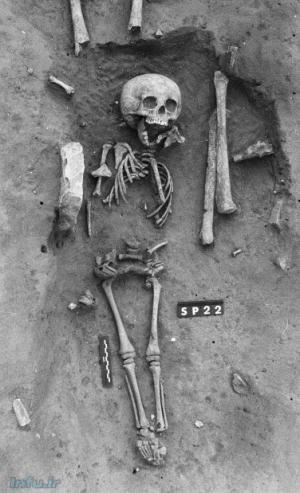 خصوصیات اصلی اسکلت ۱۵۰۰ساله این کودک، حکایت از ابتلای وی به سندروم داون دارد.