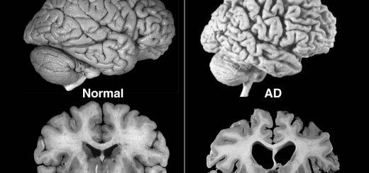 مقایسه کالبدشکافی مغز بیمار مبتلا به آلزایمر و مغز سالم
