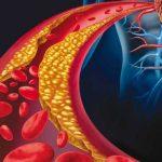 کلسترول بالای خون
