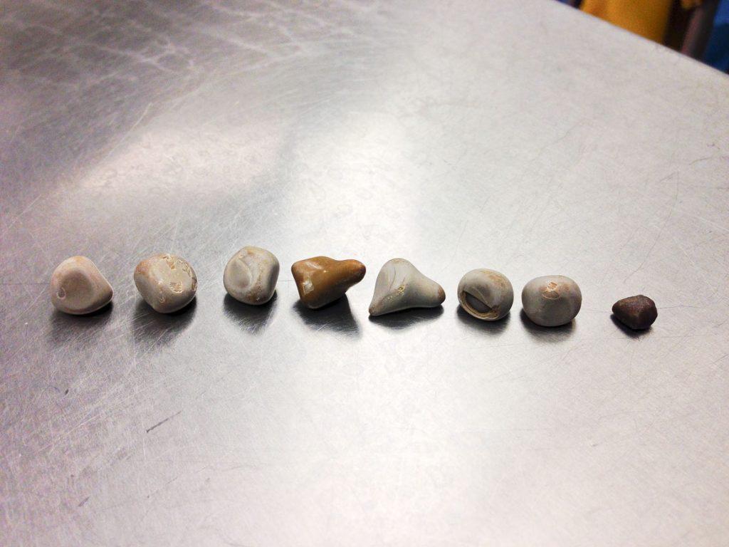 سنگهای کلیه