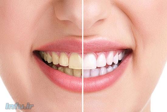 دندانهای سفید