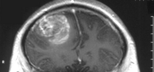 سرطان مغز در پسر ۱۵ ساله (Gliobastoma)