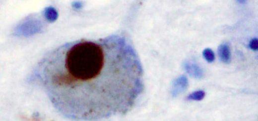 یک جسم لوی (دانهی غیرعادی پروتئین) در سلول عصبی بیماری پارکینسون