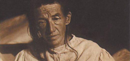 آگوسته دیتر نخستین کسی که آلویز آلزایمر بیماری «آلزایمر» او را تشخیص داد.