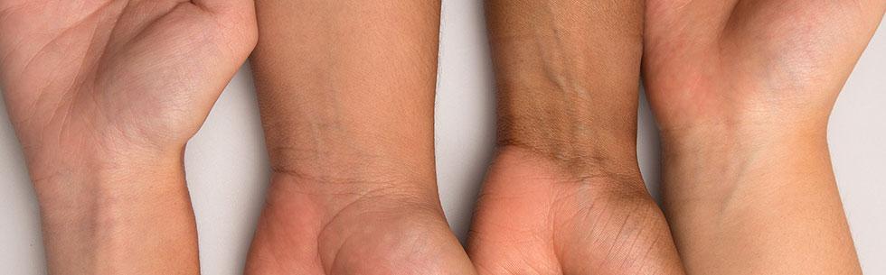 ته رنگ پوست