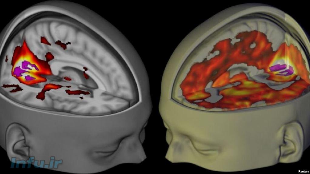 مغز تحت تاثیر تلقین(چپ) و مغز تحت تاثیر الاسدی(راست)