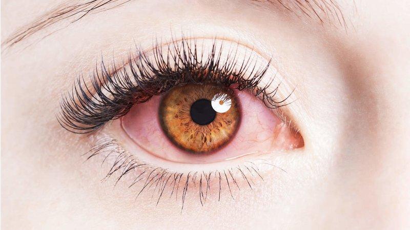 دلیل قرمز شدن چشم,علت قرمزی چشم ها