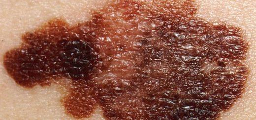 تومور پوستی