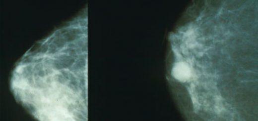 پستان سرطانی(راست)