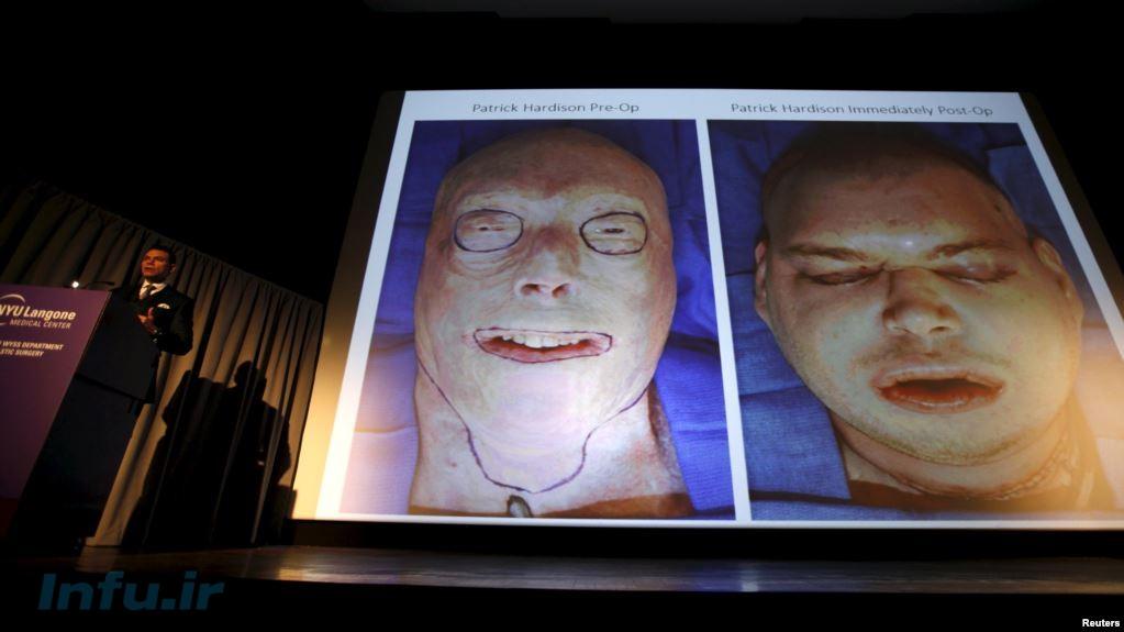دکتر رودریگوز در کنفرانسی پس از پیوند صورت (تصویر صورت آتشنشان داوطلب، پیش و پس از جراحی)