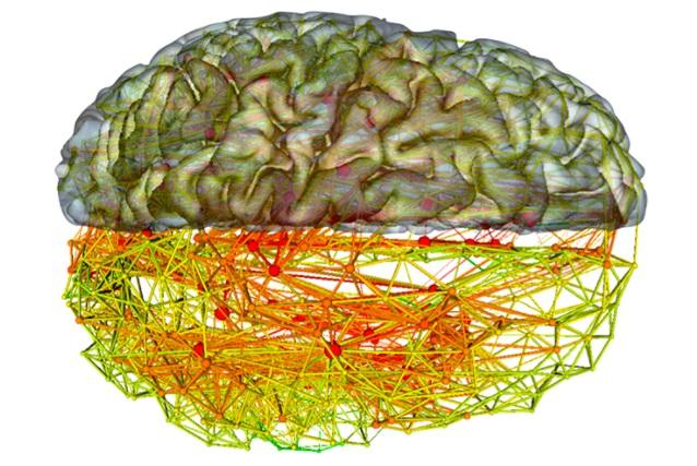 شبکه های عصبی و مغز