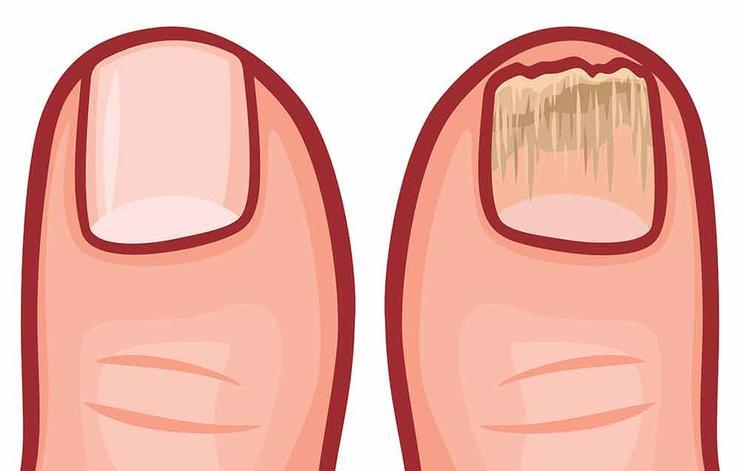دلیل ورم پاها چیست,shutterstock_482163664-infection-tribalium