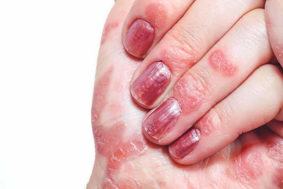 پسوریازیس، یکی از دلایل اصلی خارش انگشتان است