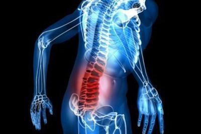 بیماری استخوان | پوکی استخوان