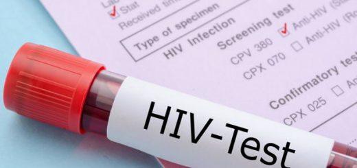 واکسن HIV